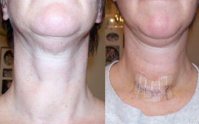 Удалена щитовидная железа - уровень ТТГ