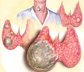 Аутоиммунный тиреоидит с узлообразованием