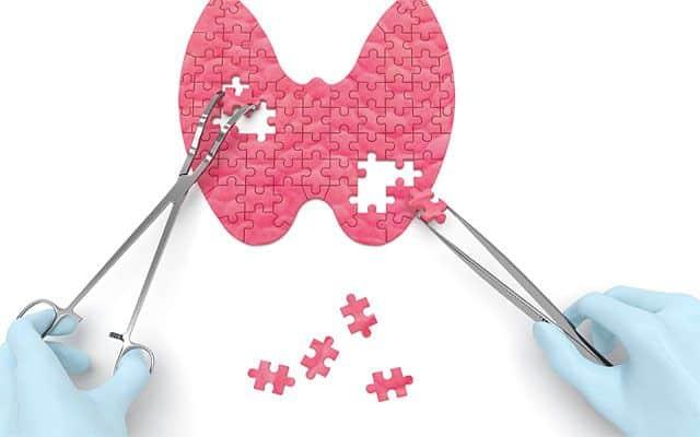 Цитологическое исследование щитовидной железы