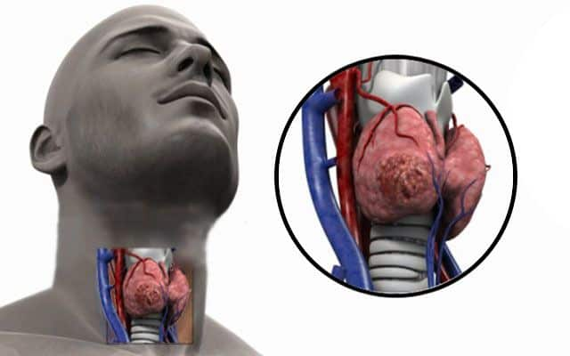 На щитовидке обнаружены узлы