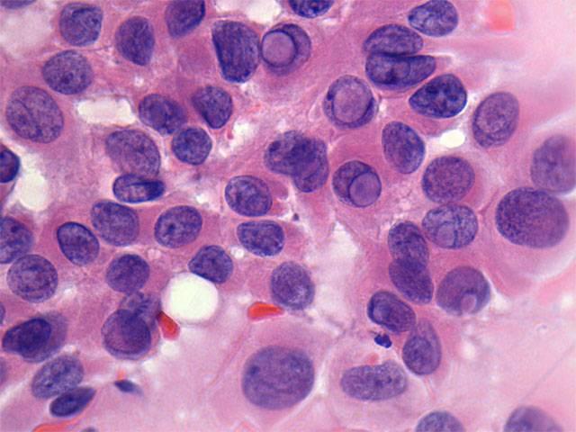 Цитологическая картина папиллярной карциномы щитовидной железы