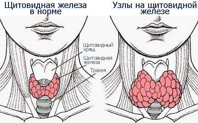 Узелки щитовидной железы