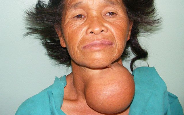 Узлы на щитовидке, а гормоны в норме