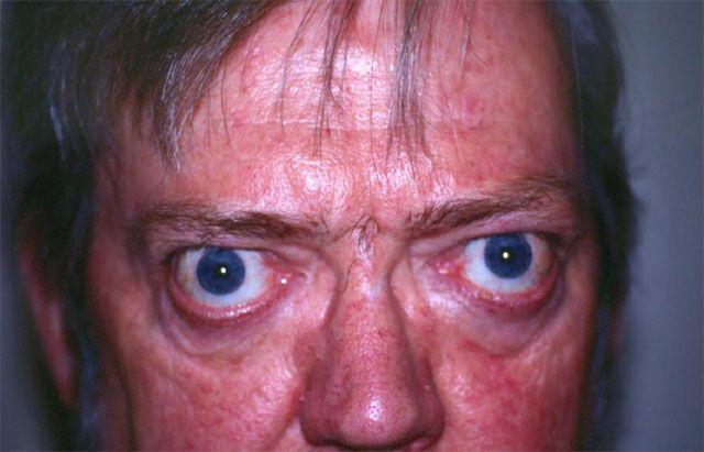 Заболевание щитовидки у мужчин Базедова болезнь