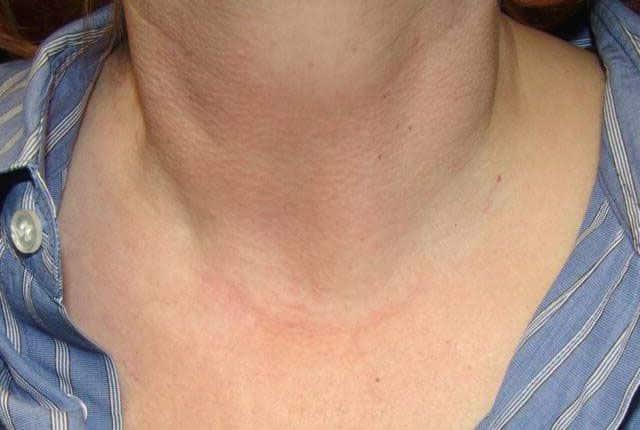 удалили щитовидку и лимфоузлы