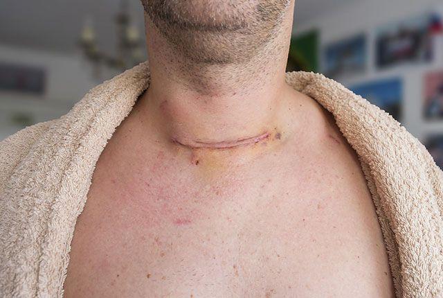 Средний шрам после операции