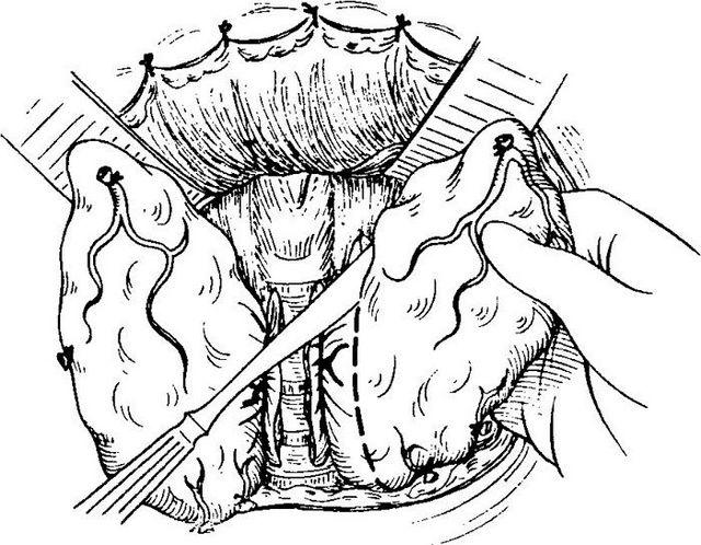Тотальная или частичная струмэктомия щитовидной железы