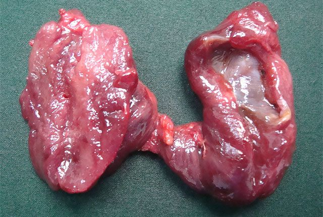 Удаленная щитовидка фото1