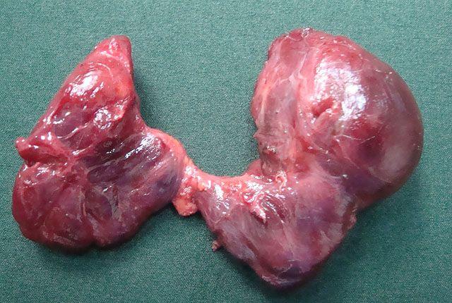 Удаленная щитовидка фото2