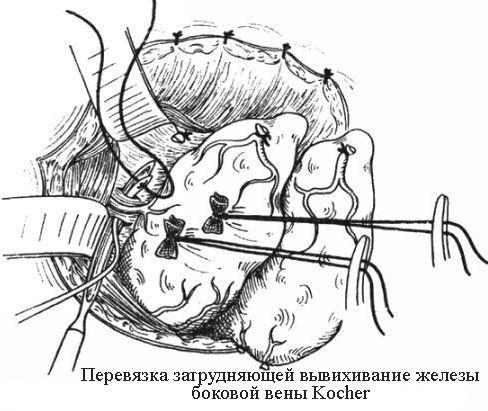 Перевязка боковой вены Kocher