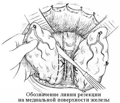 Обозначение линии резекции на медиальной поверхности железы