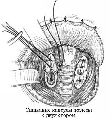Сшивание капсулы железы с двух сторон