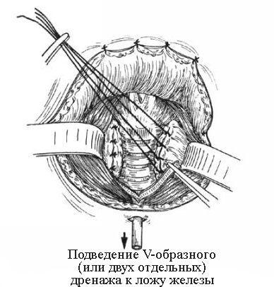 Подведение V-образного дренажа к ложу железы