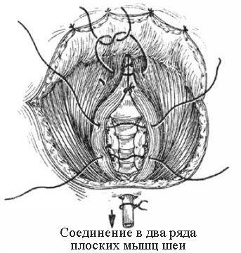 Соединение в два ряда плоских мышц шеи