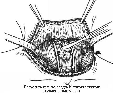 Разрез по линии подъязычных мышц