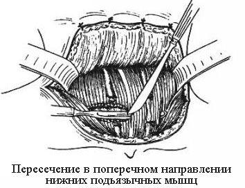 Пересечение подъязычных мышц