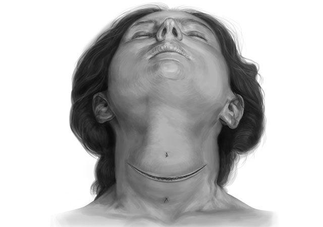 Разрез щитовидной железы