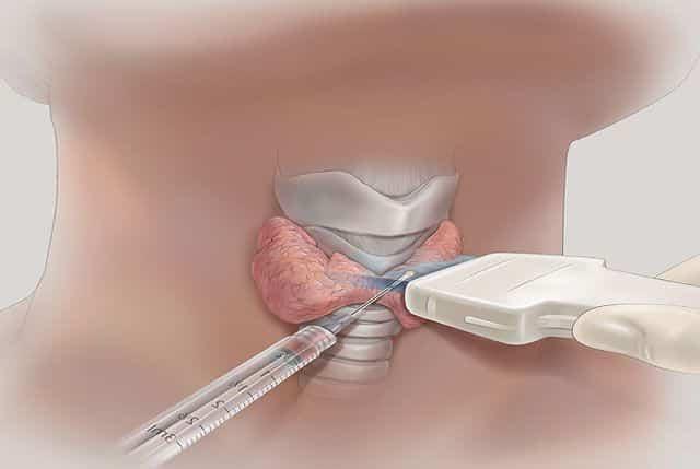 ТАБ узлов щитовидной железы