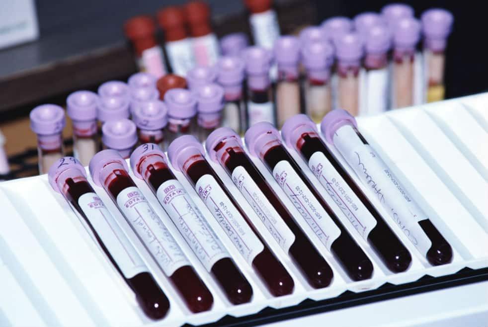 Где сдать кровь на паратгормон