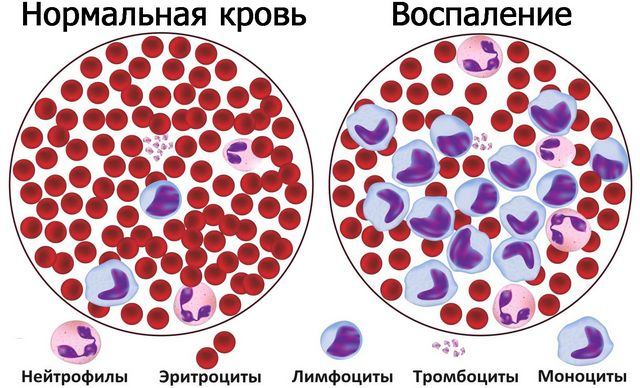 При аутоиммунном тиреоидите т лимфоциты в крови