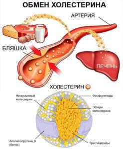 Обмен холестерина (липидный)