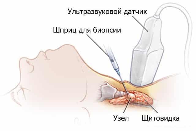 Тонкоигольная биопсия тканей щитовидной железы