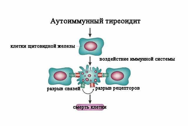 Механизм действия аутоиммунного тиреоидита