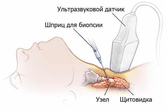 Биопсия щитовидки