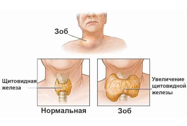 Диффузно-узловой зоб щитовидной железы - заболевание эндокринного органа