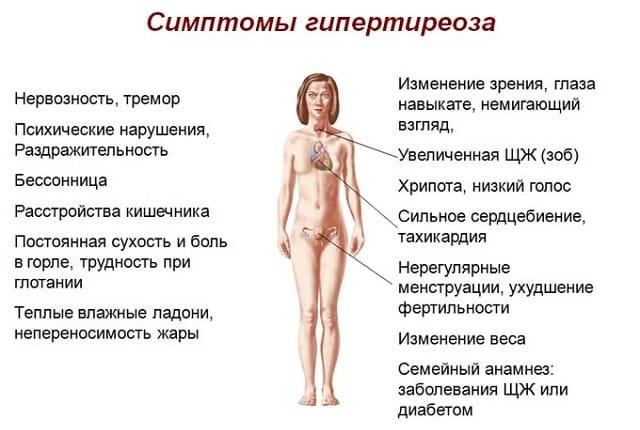 Симптомы узлового зоба на фоне гипертиреоза