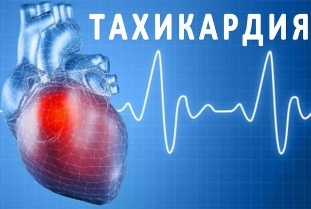 Тахикардия при аутоиммунном заболевании щитовидки
