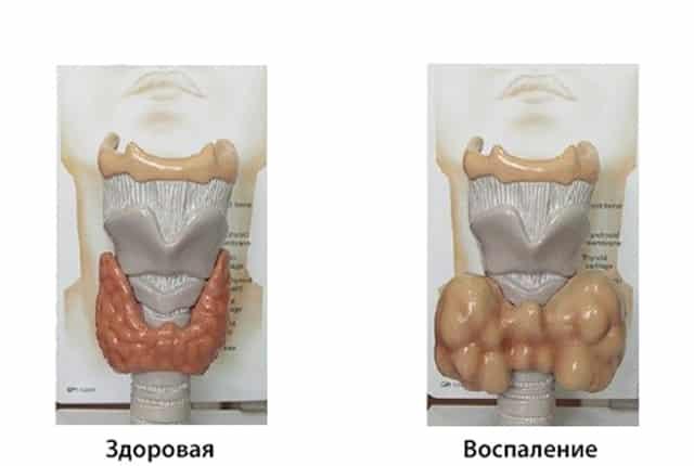Увеличением щитовидной железы