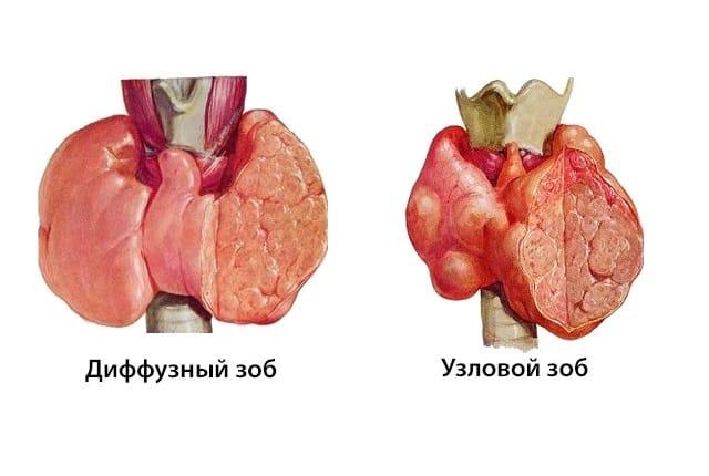 Зоб диффузного и узлового типа