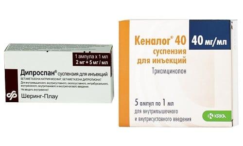 Кеналог или Дипроспан назначаются при воспалительных патологиях разной локализации